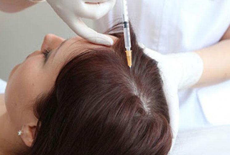 Mésothérapie Cheveux à La Baule - Dr Potet